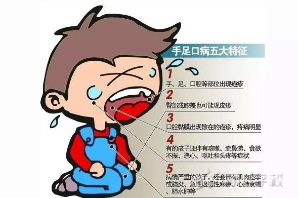 紧急通知!手足口病防控知识及告家长书--江西省西山学校幼儿园